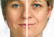 Microdermabrasion before and after Houston | http